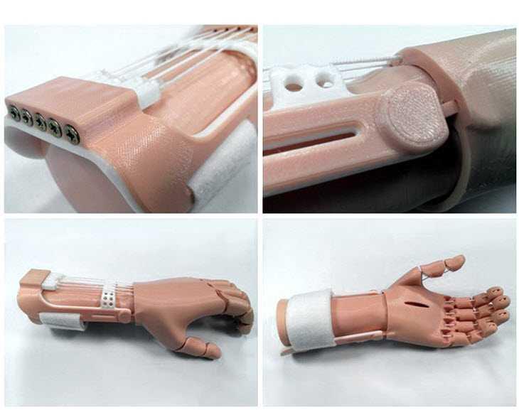 Ossa e pelle stampate a basso costo in 3D per la protesi di una mano